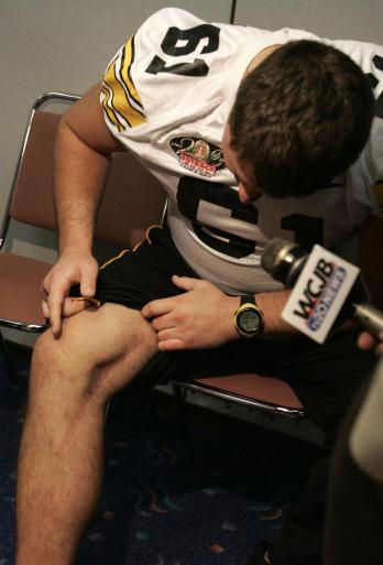 Iowa center Brian Ferentz shows a scar on his leg to members of the media prior to the Outback Bowl's DeBartolo Team Luncheon at the Tampa Convention Center in Tampa, Florida on Thursday December 29, 2005. Ferentz suffered a staph infection before the 2004 season. He lost parts of his right knee because of it. (Cliff Jette/Gazette)